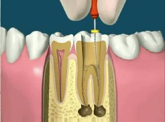 endodontia Dentalsul
